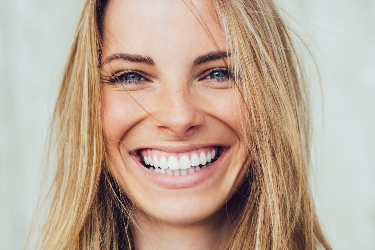 Closeup of a blonde woman smiling brightly with dental implants