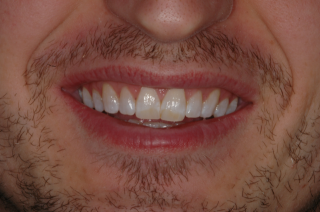 Cody's discolored smile before cosmetic treatment by Dr. Lynn Jones