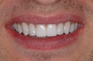 "Cody's ""after"" photo after minimally invasive veneers"