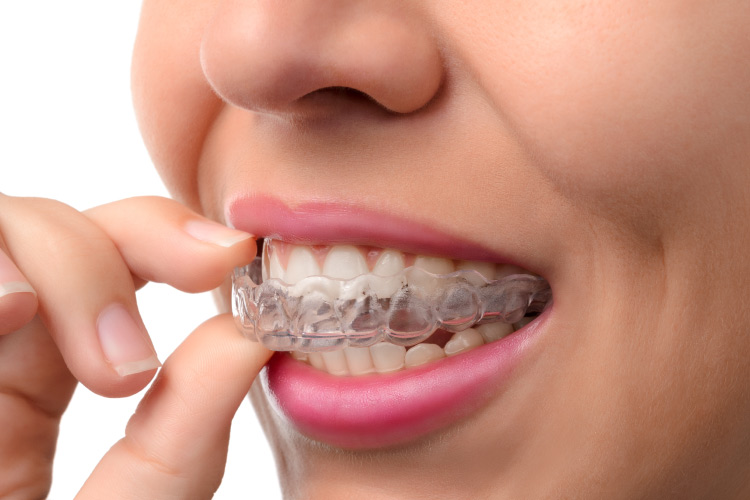 Closeup of a woman taking out her Invisalign aligners to clean them