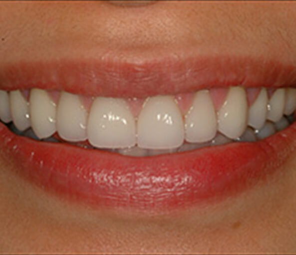 closeup of smile after CEREC