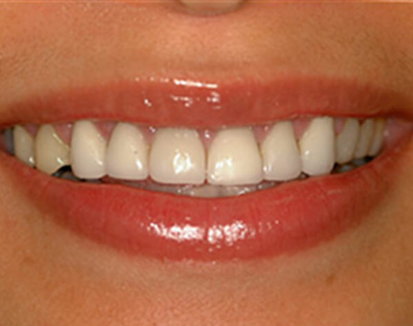 closeup of smile before CEREC