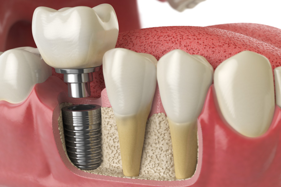 Closeup of a dental implant post topped with a dental crown