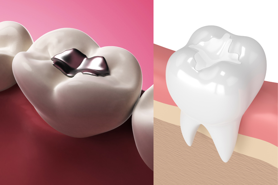 Silver filling/dental amalgam filling vs a tooth-colored filling/composite filling