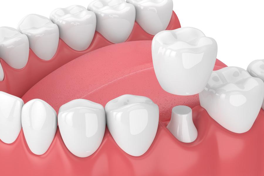 Closeup of a same-day CEREC dental crown from Optima Dental Spa